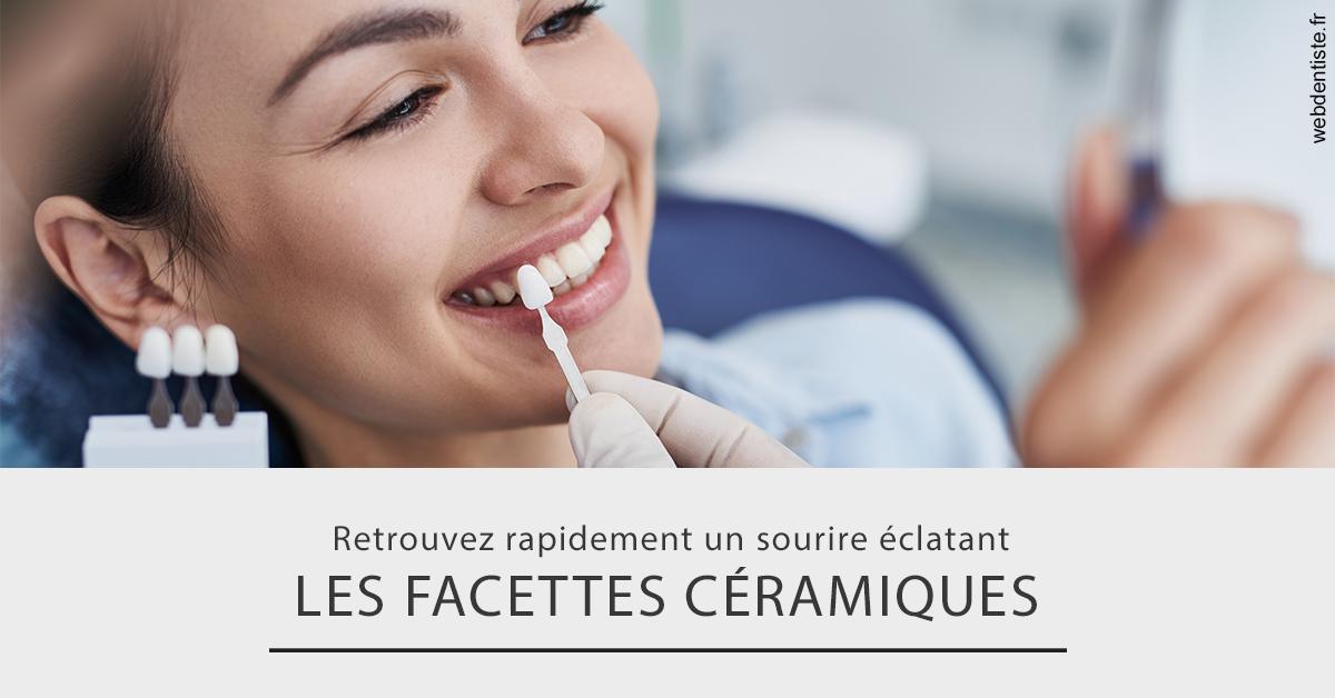 https://dr-henry-jeanluc.chirurgiens-dentistes.fr/Les facettes céramiques 2