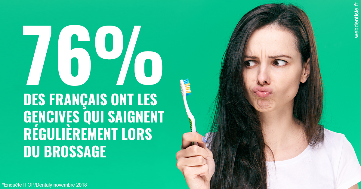 https://dr-henry-jeanluc.chirurgiens-dentistes.fr/76% des Français 1